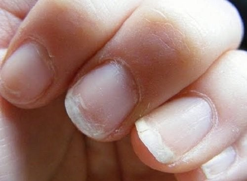 A woman with fragile nails.