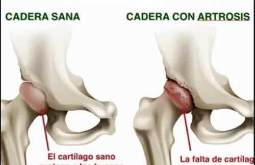 Osteoarthritis of the hip.