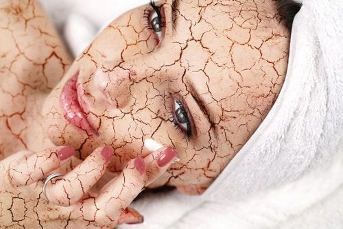 How to Reduce Dry Skin on Your Face
