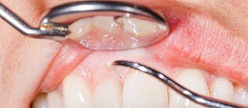 14 Reasons Why Your Gums Bleed When Brushing Your Teeth
