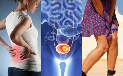 7 Signs of Bladder Cancer to Watch Out For