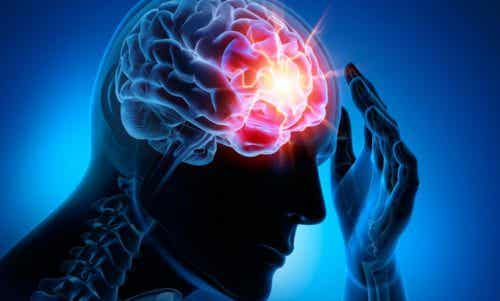 The Four Most Common Cerebrovascular Diseases