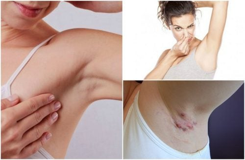 5 Health Warnings From Your Underarms