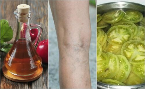 Fight Varicose Veins With a Vinegar and Green Tomato Remedy