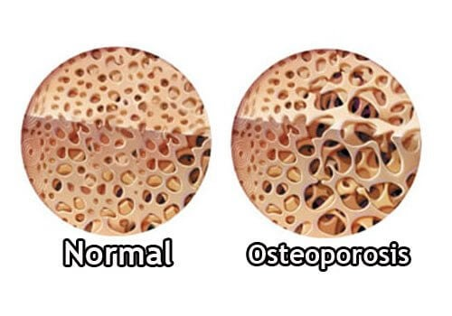 How to Control Osteoporosis During Menopause