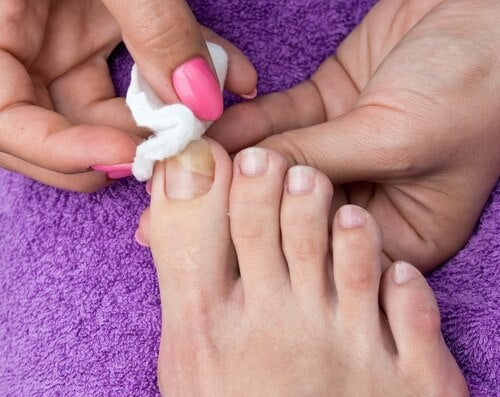 using cotton wool to treat an ingrown toenail