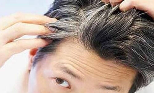 Avoid Getting Gray Hair Early with These 6 Vitamins and Foods