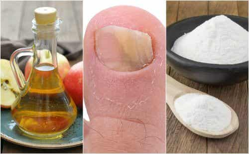 Fight Nail Fungus with Apple Cider Vinegar and Baking Soda