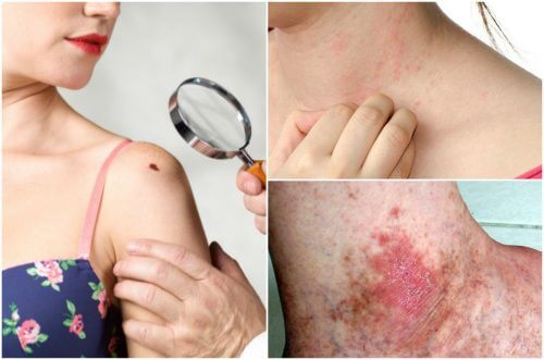 6 Skin Cancer Symptoms You Should Not Ignore