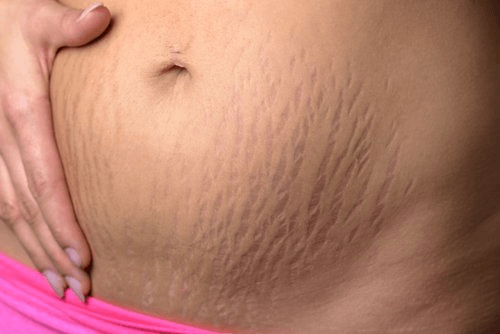 diet plan to reduce stretch marks