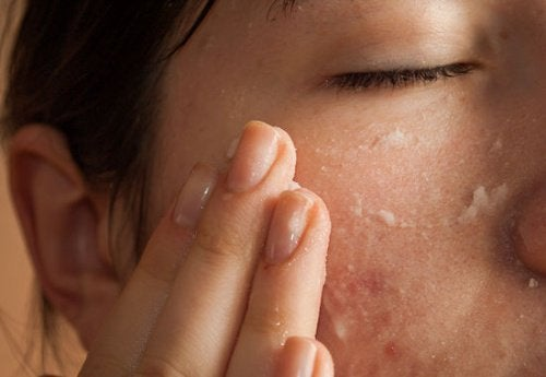 Woman touching skin close-up of acne prone skin wet skin uses for aspirin