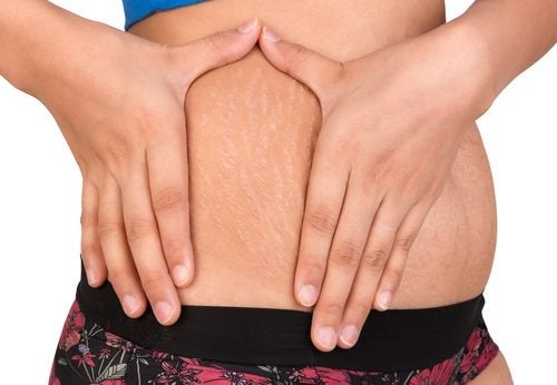 Two Natural Alternatives to Treat Stretch Marks