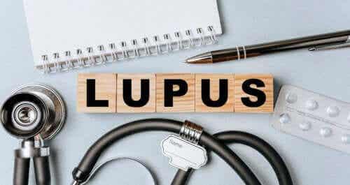 Characteristics of Systemic Lupus Erythematosus