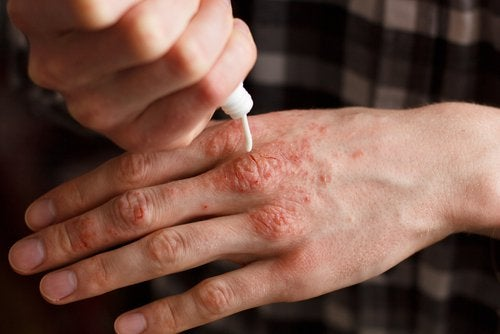 Therapies and Methods to Treat Psoriasis