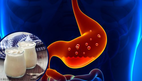 Home-Made Remedies for Gastritis