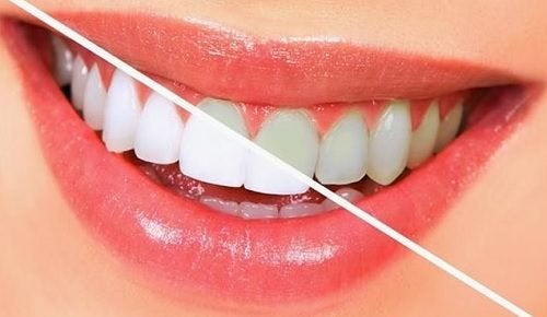 9 Foods that Help You Maintain Dental Health