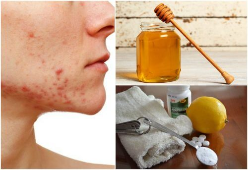 Cystic Acne: 6 Natural Remedies