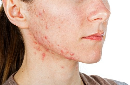 A girl with bad acne.