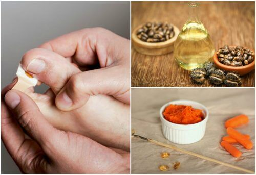 Get Rid of Hangnails with These 8 Natural Treatments
