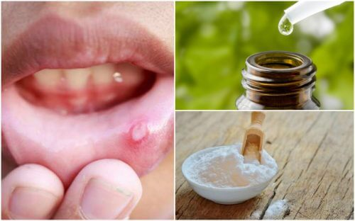 Get Relief from Mouth Ulcers with 6 Natural Remedies