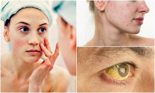 7 Signs of A Nutrient Deficiency You'll See on Your Face