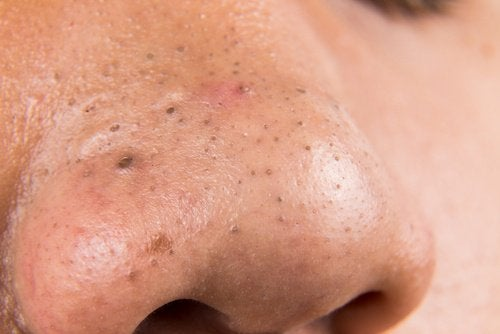 Pimples and spots on a man's nose