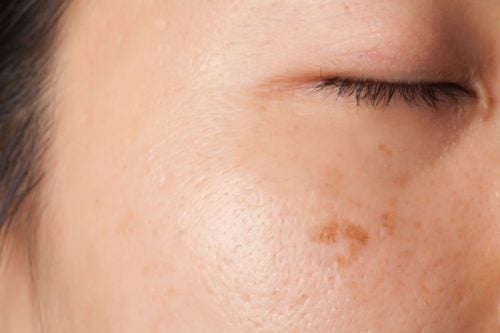 Skin changes and spots as one of the symptoms of cancer