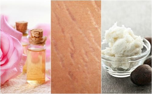 Make Stretch Marks Less Noticeable with These 4 Natural Treatments