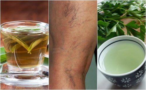 5 Diuretic Teas for Varicose Veins