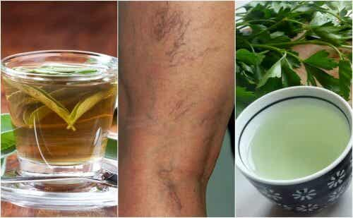 5 Diuretic Teas You Can Drink If You Suffer from Varicose Veins