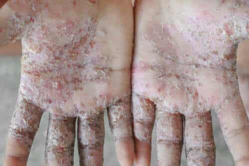 Three Easy Home Remedies to Get Rid of Scabies