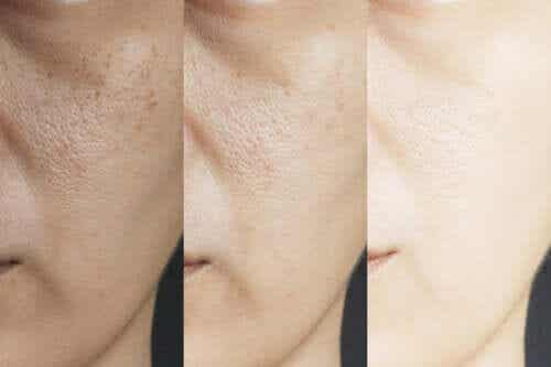 Eight Homemade Remedies to Shrink Enlarged Pores