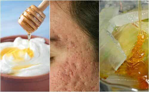 Face Masks for Pockmarks: 5 Natural Recipes That Work