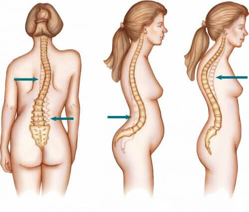Women suffer from scoliosis more than men.