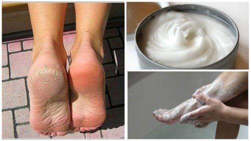 Treat Foot Fungus and Corns with this Amazing Natural Remedy