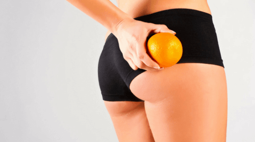 7 Remedies to Naturally Reduce Cellulite: They Work!