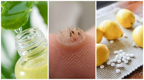 Six Powerful Homemade Wart Remedies