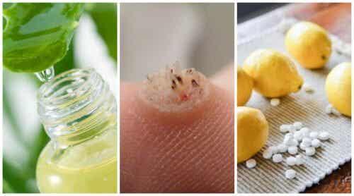 Six Powerful Homemade Wart Remedies