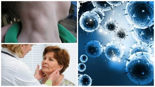 Lymphoma: a Silent Cancer that can be Treated if Detected in Time