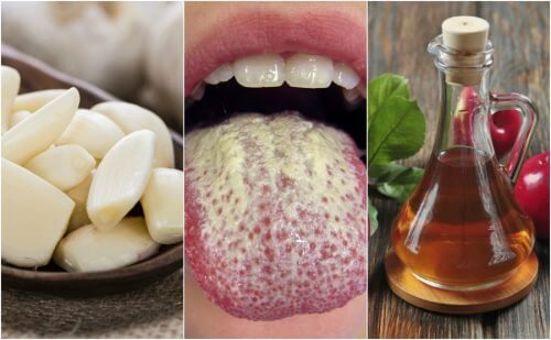 Control Candida Growth with these 6 Natural Remedies