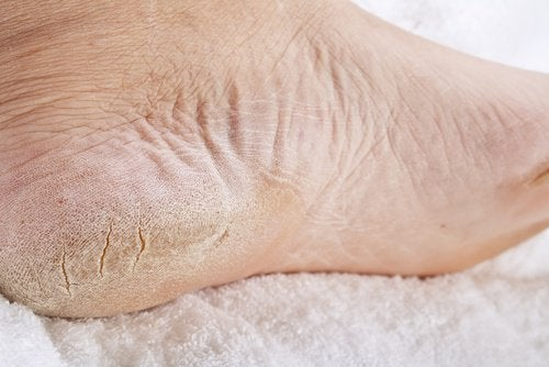 a home remedy to treat foot fungus and calluses