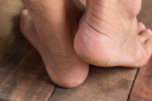 cure a heel spur: feet