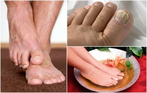 The Symptoms of Foot Fungus: Do You Have Them?