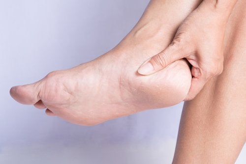 How to Cure a Heel Spur Naturally