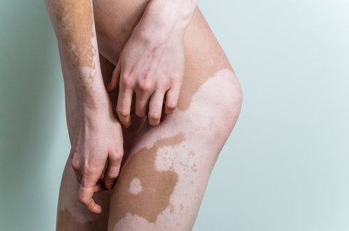 What is Vitiligo? Learn All About its Causes and Cures