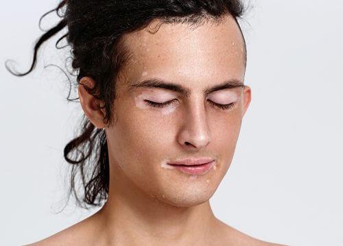 Woman with vitiligo