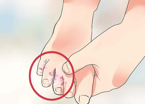 7 Natural Treatments for Athlete's Foot