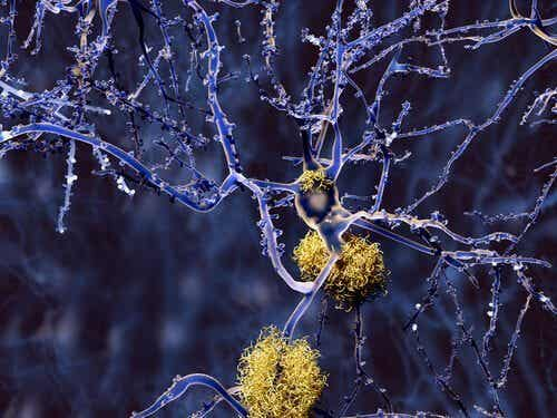Non-Alzheimer's Types of Dementia