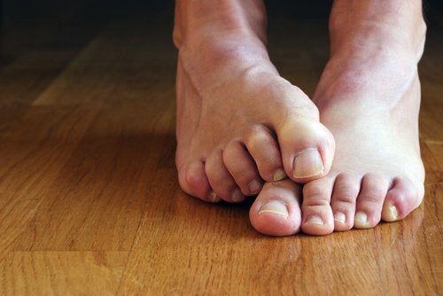 A person with athlete's foot.