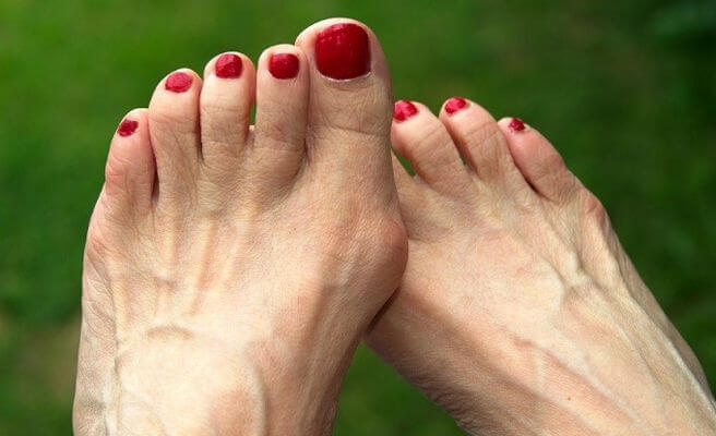 Feet with bunions and corns